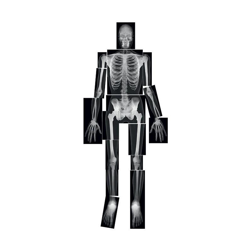 Szkielet człowieka -  rentgen